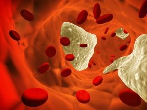 Entstehung von Arteriosklerose